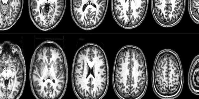 Neurociencia y terrorismo: análisis del cerebro de tres extremistas en Barcelona