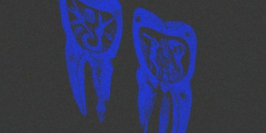 Enfermedades de los dientes y encías están asociadas a un mayor riesgo de cáncer de hígado
