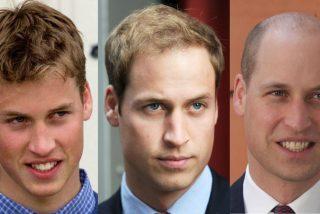 ¿Cuál es la edad ideal para hacerse un implante de pelo?