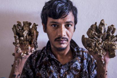 Así es el 'hombre árbol', pide desesperado que le amputen las manos