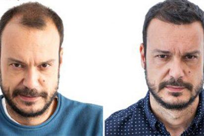 ¿Compensa viajar a Turquía a injertarse pelo?