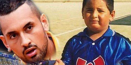 Nick Kyrgios sorprende a todos con esta foto de niño: rechoncho y con cara de triste