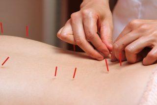 Sesión de acupuntura: Una mujer acaba con los pulmones colapsados al insertarles las agujas