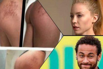 El examen médico a la mujer que acusa a Neymar de violación, no detecta lesiones en sus genitales