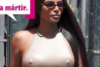 Kim Kardashian; no sólo celulítica, ahora también medio calva