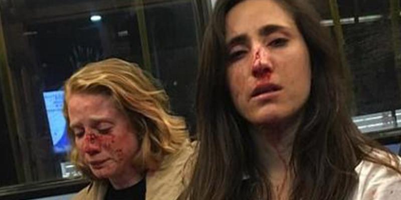 Brutal agresión: Así dejó las caras a esta azafata de Ryanair y su novia una banda de miserables en Londres