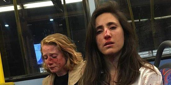 Golpean a una azafata uruguaya y su novia en un autobús londinense: intentaron obligarlas a besarse