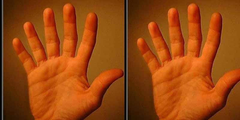Manos: tener seis dedos aumenta las habilidades con las manos
