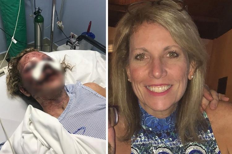 ¿Mintió Tammy?, la mujer atacada brutalmente en un hotel de lujo en Punta Cana