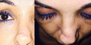 Le amputan parte de la nariz a esta chica por error al acudir a hacerse una operación estética