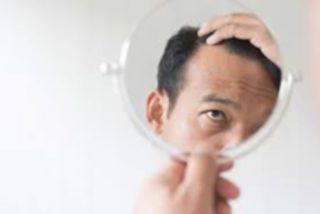 ¿El pelo injertado puede volver a caerse?