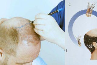 ¿Duele mucho el injerto de pelo?