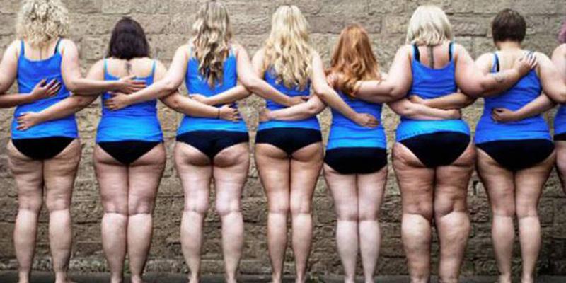 """Lipedema; Cuando la grasa de las piernas no se va, te duele y """"los médicos solo te dicen que estás gorda"""""""
