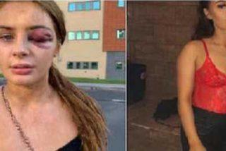 """""""Lo siento, pero no estoy interesada"""", la frase que le costó un ojo morado a esta chica de 18 años"""