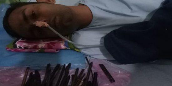 """Los médicos se sorprenden al encontrar """"navajas de afeitar, cuchillos y un destornillador"""" en el estómago de este hombre"""