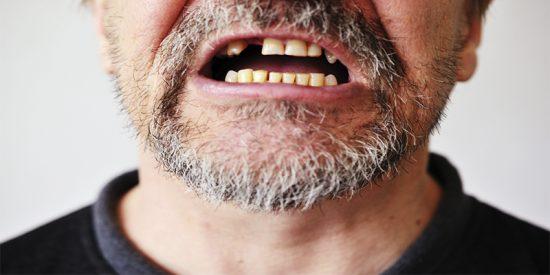 Un camarero marroquí arranca de un mordisco un trozo de cuero cabelludo a su jefe español