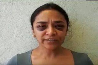 Esta periodista mexicana denuncia un intento de violación, acude a la policía y acaban golpeándola brutalmente