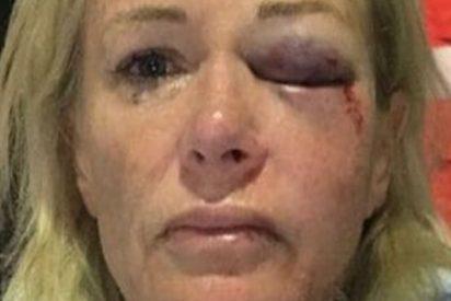 Esta mujer queda inconsciente tras ser agredida por un hombre que conoció en Tinder