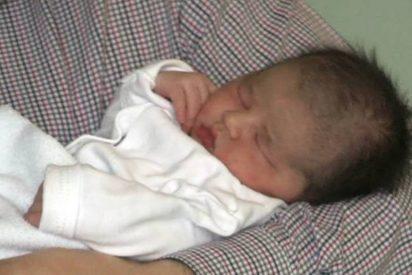 España: Al menos 14 bebés afectados por el 'síndrome del hombre lobo' tras ingerir omeprazol contaminado