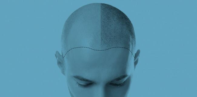 Injerto capilar: ¿Cuánto tarda en salir el pelo nuevo y se nota mucho o tiene otro color?