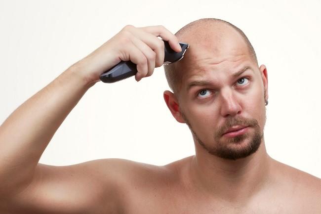 Transplante capilar: ¿Tengo que afeitarme todo el pelo de la cabeza?
