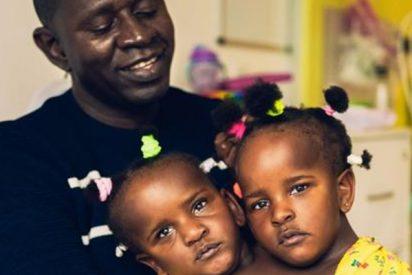 La horrible elección de un padre de siamesas: separarlas para que solo viva una o la muerte de ambas
