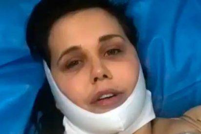 Estremecedoras imágenes de Miriam Sánchez tras salir de la operación de reducción general de masa corporal