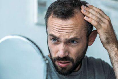 Alopecia en otoño ¿es verdad todo lo que se dice?