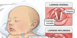 El Primer Minuto: cómo detectar si tu hijo está sufriendo un crup laringeo