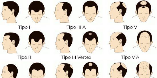 ¿Qué grado de alopecia sufro?