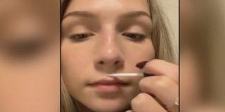 El terrible nuevo reto viral: pegarse los labios con pegamento para que parezcan más gruesos