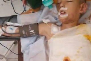 Este niño de 8 años en estado grave tras ser rociado y quemado con gasolina por sus compañeros