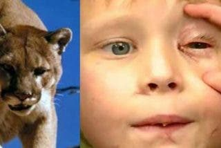 Este niño logra sobrevivir forcejeando con una puma que apresó su cabeza entre sus fauces