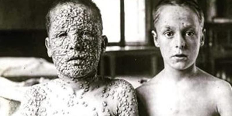 ¿Sabes por qué todavía se guardan dos muestras del virus de Viruela?
