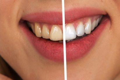 Dientes: 7 consejos para conseguir una sonrisa blanca y perfecta