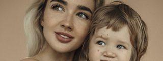Esta bloguera comparte fotos de la inusual enfermedad de su hijo