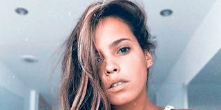 La ruptura con Kiko Jiménez podría ser el motivo de la alarmante pérdida de peso de Gloria Camila