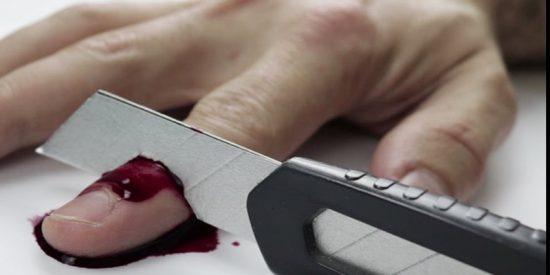 Irán: Le cortan los dedos a un hombre como castigo por robar