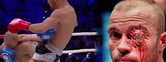Le 'revientan' el ojo en su primer combate profesional y el doctor tiene que parar el combate