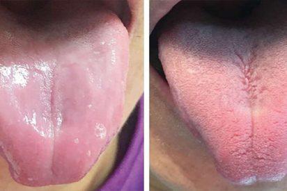 Por la deficiencia de esta vitamina perdió sus papilas gustativas y su lengua se le volvió completamente suave