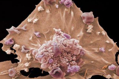Los científicos buscan detectar las señales más precoces del cáncer antes de que emerja
