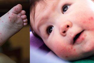 ¿Sabías que la enfermedad de manos, pies y boca es contagiosa? ¡Así se trata!