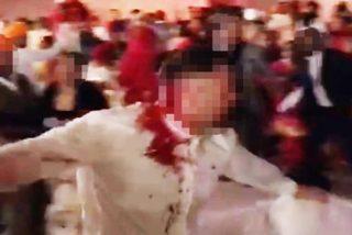 Pelea brutal en una lujosa boda dejó a tres heridos graves