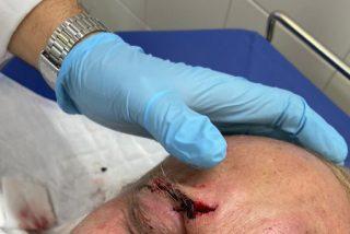 El productor de 'OT' (TVE) llama a las barricadas a los violentos y publica una foto con su cara partida y ensangrentada