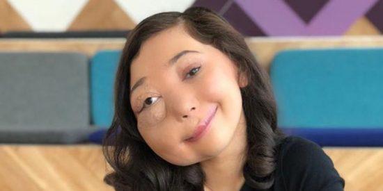 Esta es Nikki Lilly, la youtuber con una malformación en el rostro que será premiada en los BAFTA