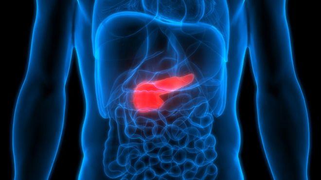 """Así es la combinación de 2 fármacos que """"mata de hambre"""" a las células cancerosas del páncreas"""
