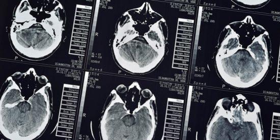 ¡Terrible!: Encuentran más de 700 tenias en el cerebro, pecho y pulmones de un hombre después de que comiera carne mal cocinada