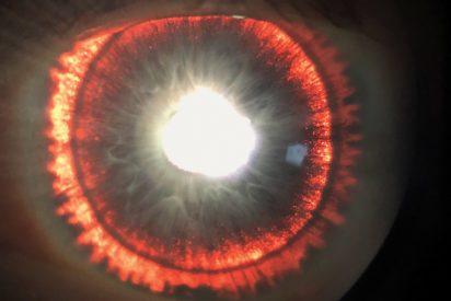 Una rara y inquietante condición genética hace que las pupilas de un hombre se parezcan al ojo de Sauron