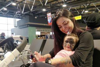 La madre de la bebé nacida en EE.UU. con 'máscara de Batman' muestra los primeros resultados del tratamiento