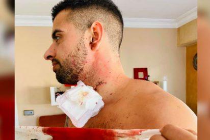 Así fue la brutal paliza que le dieron a este hombre en Mallorca: le cortaron el cuello con una copa al confundirlo con otra persona